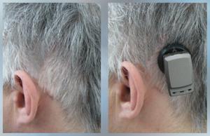 Rys. 3 Przezskórny magnetyczny system Baha® 4 Attract - 5 tygodni pooperacji.