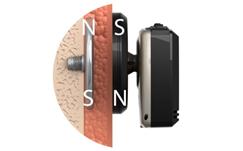 Rys.4 Przezskórny kontakt magnetyczny części zewnętrznej iwewnętrznej