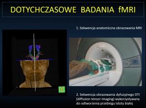 Dotychczasowe badania fMRI: 1. Sekwencja anatomiczna obrazowania MRI | 2. Sekwencja obrazowania dyfuzyjnego DTI (diffusion tensor imaging) wykorzystywana doodtworzenia przebiegu istoty białej.
