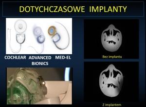 Dotychczasowe implanty. Cochlear advanced MED-EL bionics. Bezimplantu. Zimplantem.