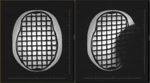 Ryc. 6. Obraz zmian nafantomie głowy wywołanych umieszczonym implantem ślimakowym